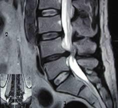 Spina dorsale di dolore in una ragione vita
